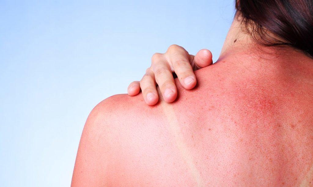 tips for treating a bad sunburn 1080x645