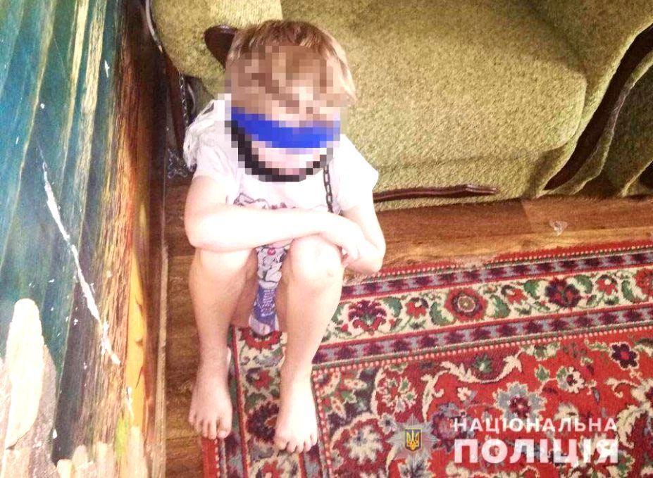 У Дніпрі багатодітна мати утримувала восьмирічного сина на ланцюгу