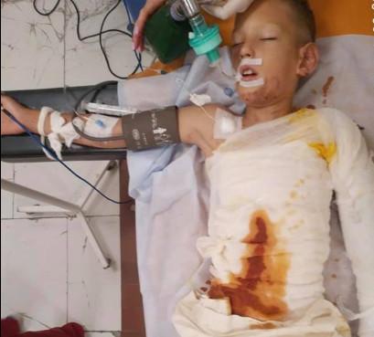 «Дитячі пустощі з вогнем»: у Дніпрі хлопчика облили бензином та підпалили