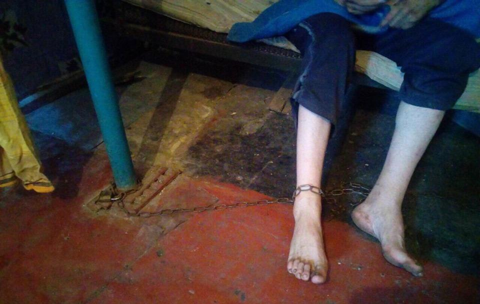 В Днепропетровской области мать держала на цепи взрослого сына с инвалидностью