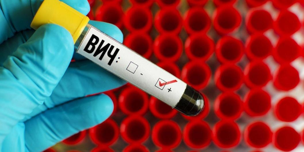 Результат через 15 минут: где в Днепре можно бесплатно пройти тест на ВИЧ/СПИД