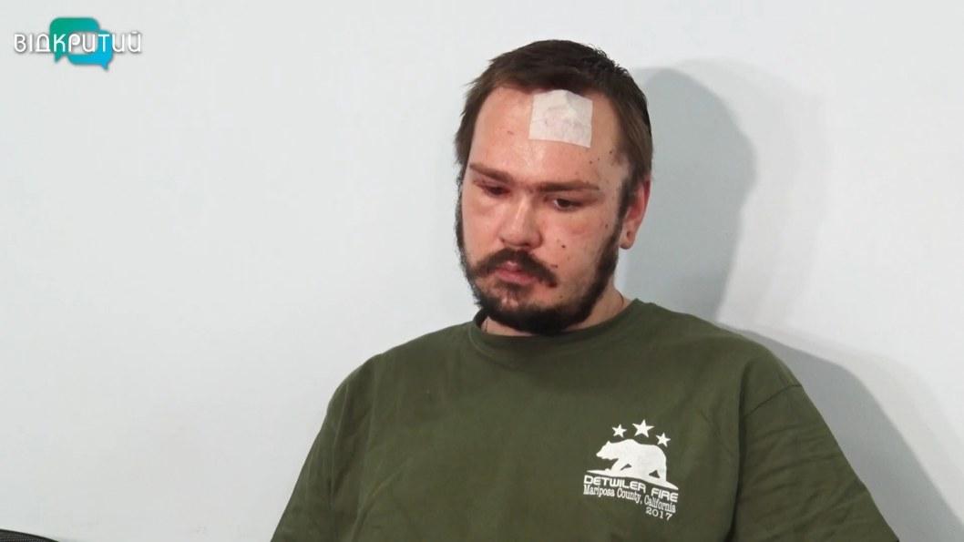 ВІДЕО: У Дніпрі рятують зір пораненому на Донбасі бійцю