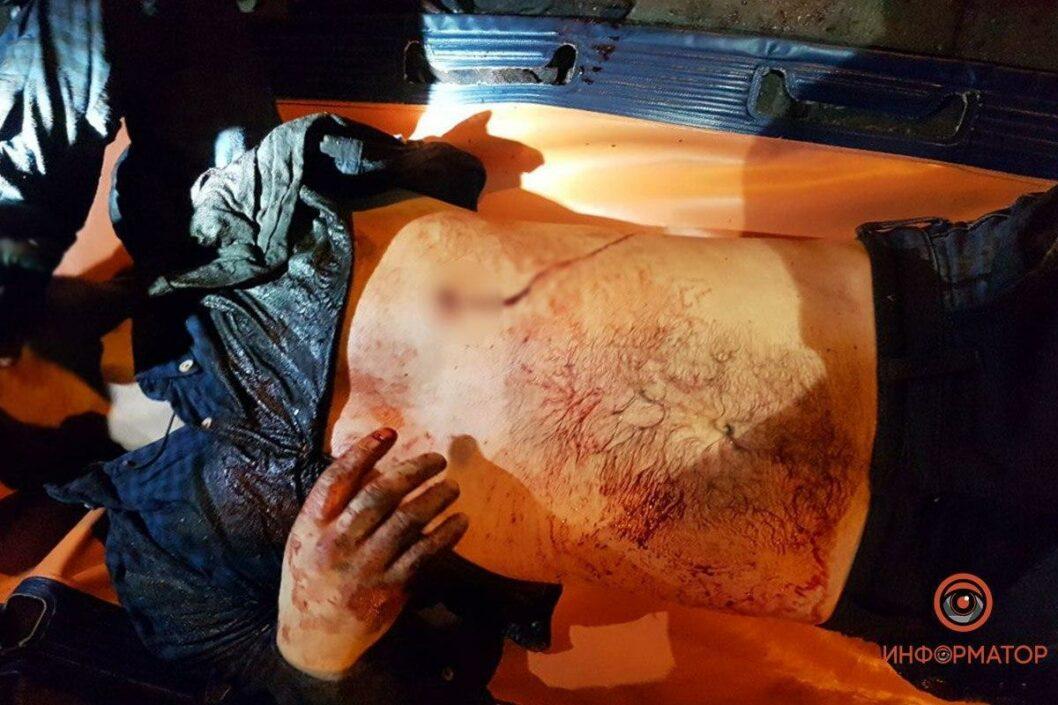 Скончался на операционном столе: в центре Днепра зарезали мужчину