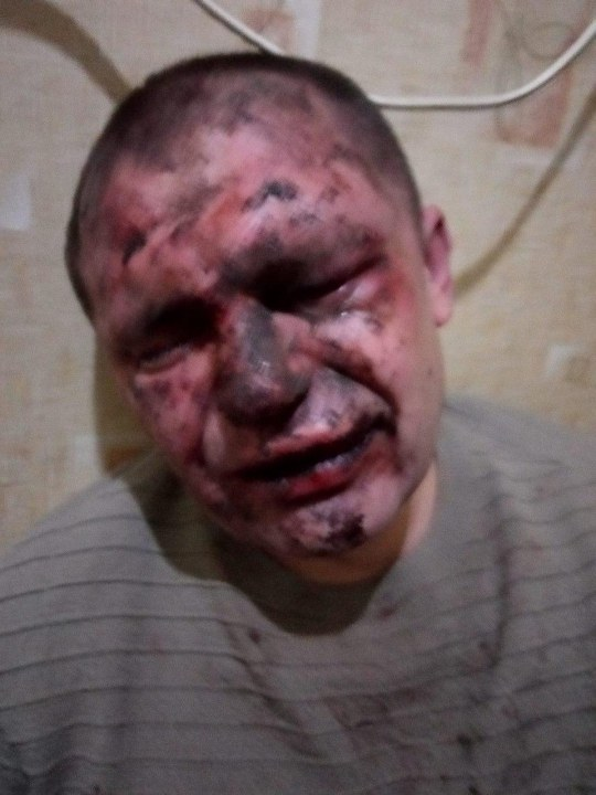 Лицо в крови и гематомах: в Днепре жестоко избили и ограбили мужчину