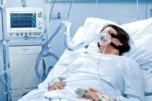 Борьба с коронавирусом: сколько в Днепропетровской области заплатили за аппараты для вентиляции легких