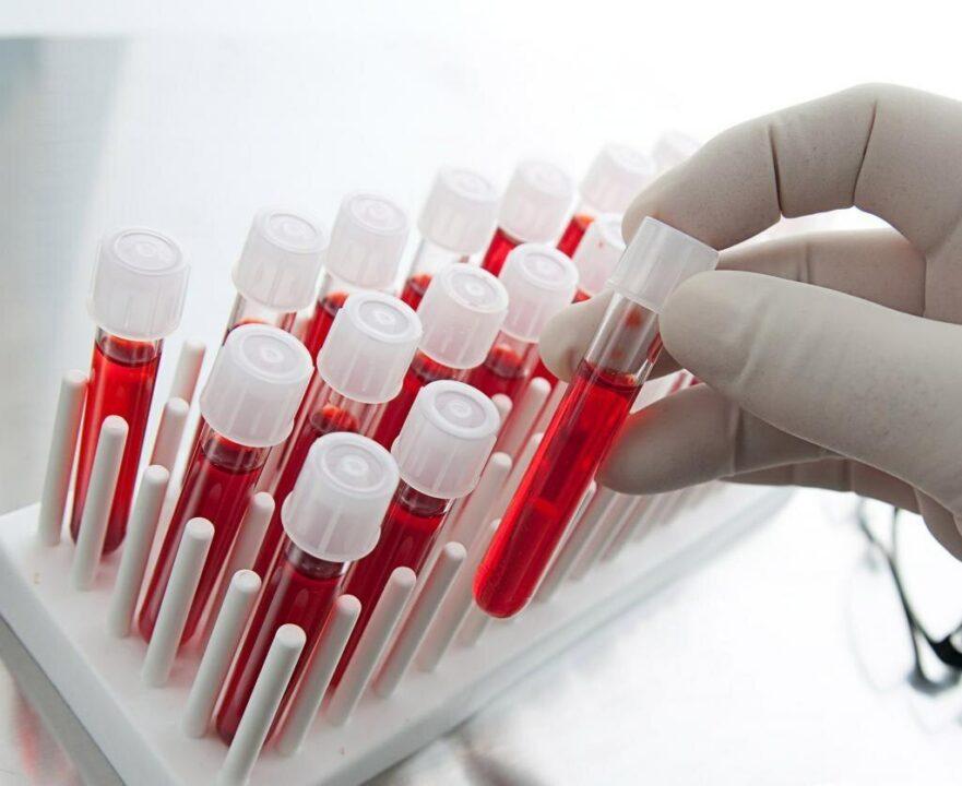 Получи 1000 гривен: Днепре собирают кровь для разработки лекарства от COVID-19