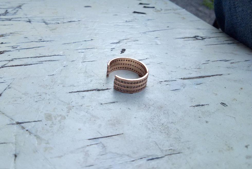 Скреплён узами брака наверняка: в Днепре мужчина не мог снять обручальное кольцо