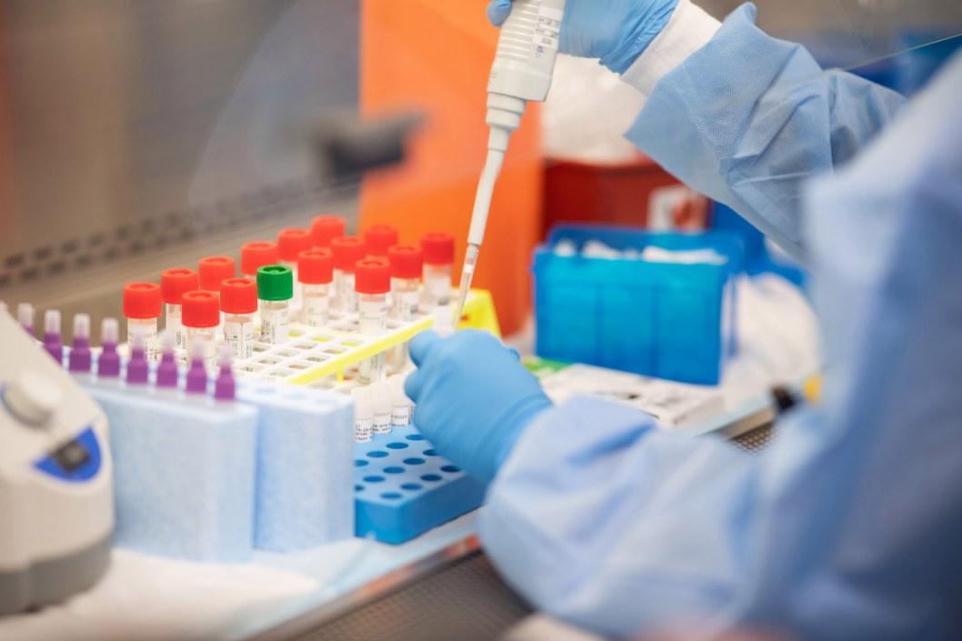 Идет на спад: свежая статистика коронавируса в Украине