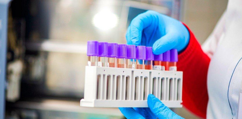 Заболевших стало меньше: сколько новых случаев COVID-19 сегодня в Украине