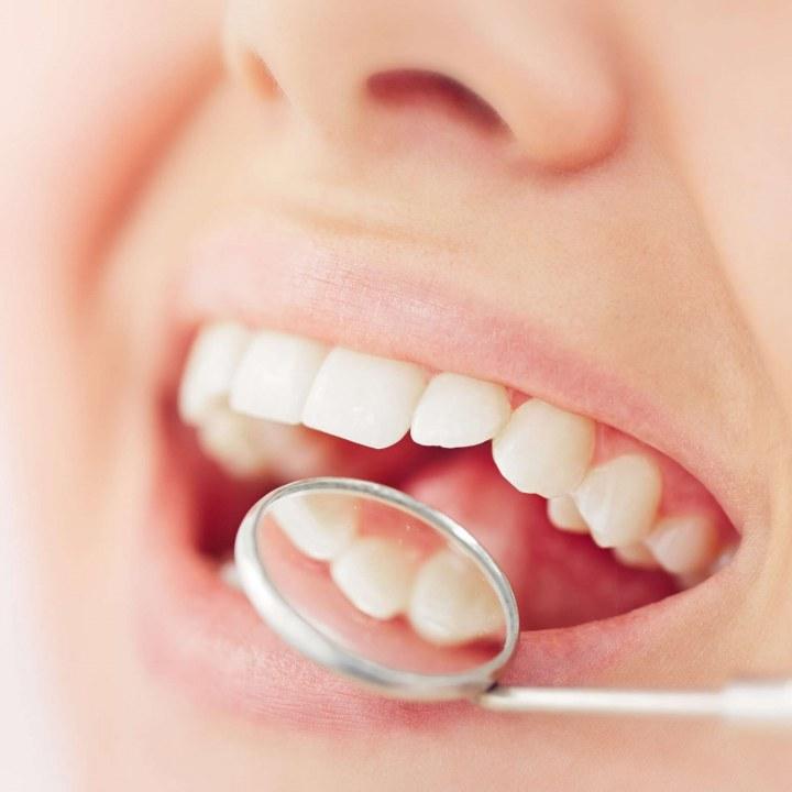 Зубная киста: причины появления, симптоматика, методы лечения