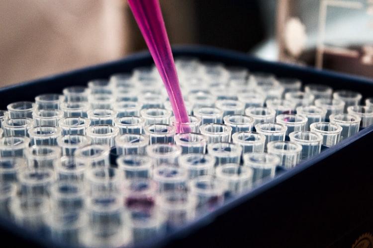 Статистика COVID-19: сколько заболевших в Днепре на 20 сентября